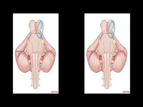 Internal Structures and Safe Entry Zones of the Brainstem (3D TV)