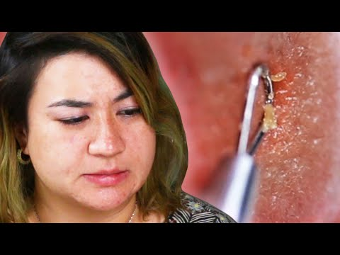 Thumbnail: People Try Pimple Extractors