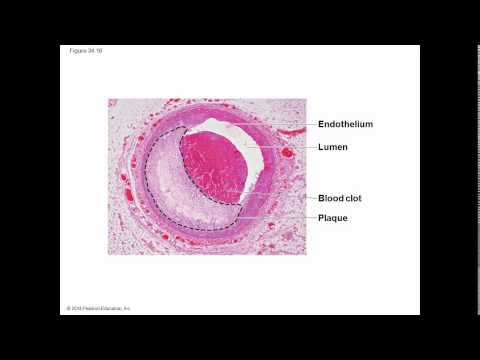 Biology in Focus Ch 34 Circulation and Gas Exchange