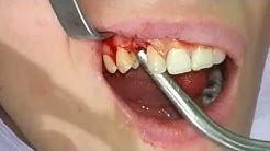 Dental implant on Maxilla