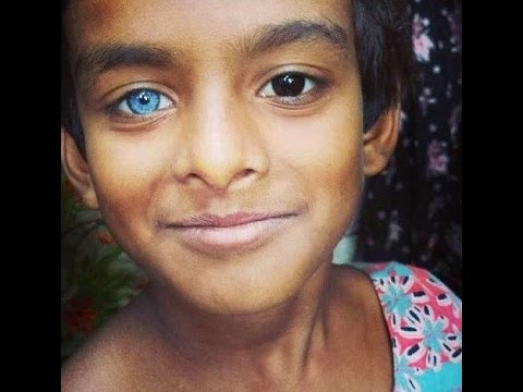Where do Blue Eyes come from? Europeans? Neanderthals? Magic Fairies? 😲