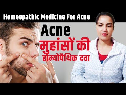मुंहासों की होम्योपैथिक दवा |  Homeopathic medicine for acne, pimple | Acne treatment homeopathy