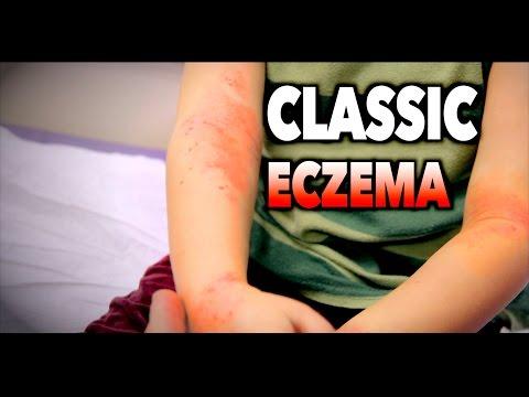 CLASSIC ECZEMA (Atopic Dermatitis) | Dr. Paul