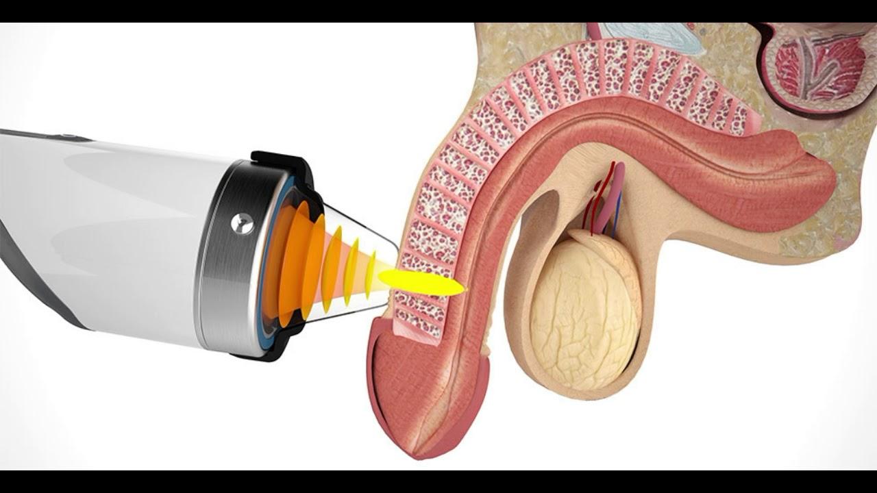 extracorporeal shock wave therapy transmetarsal amputation