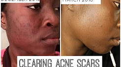 hqdefault - How To Fade Old Acne Marks