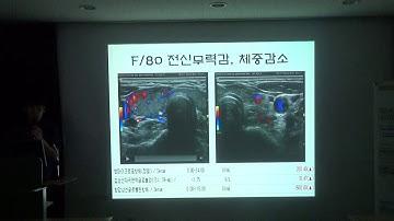 2019년 9월 11일 영임초 강의 - 미만성 갑상선 질환(Dr.황세진)