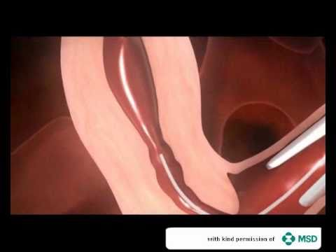 In-vitro fertilisation (IVF)
