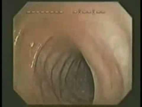 Толстый кишечник изнутри
