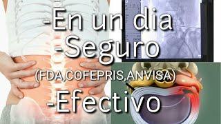 Hernia de disco sin cirugía || Hernia de disco lumbar || Ciatica || Lumbalgia