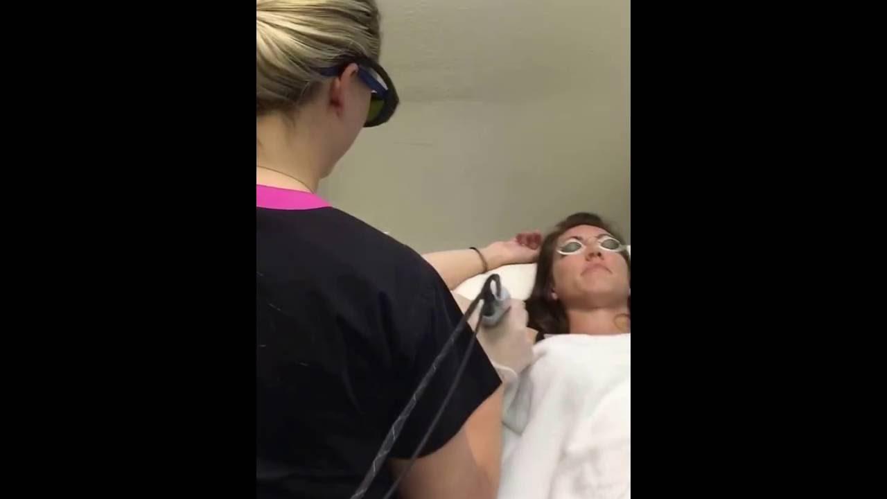Laser Hair Removal Pristine Image Med Spa