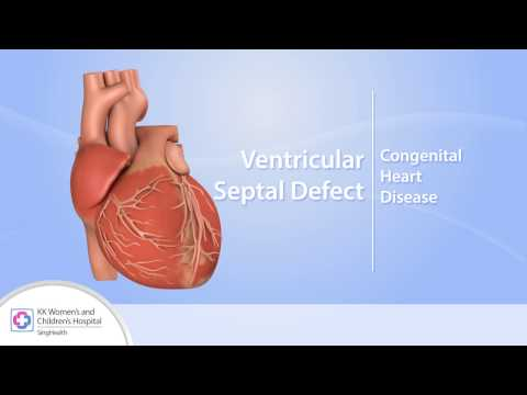 Heart Conditions – Ventricular Septal Defect (VSD)