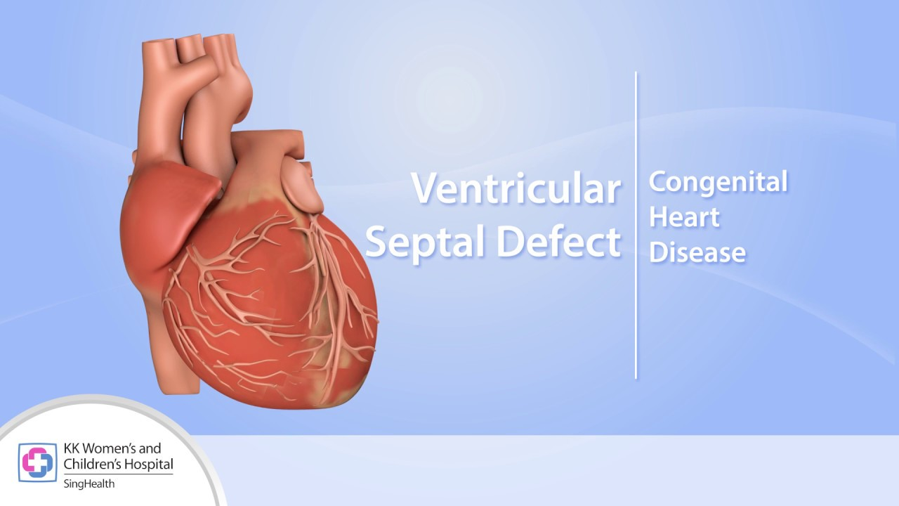 Heart Conditions Ventricular Septal Defect Vsd Youtube