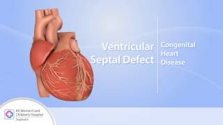 Heart Conditions – Ventricular Septal Defect (VSD)