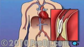 Balloon Angioplasty Coronary Angioplasty Heart Surgery PreOp® Patient Education