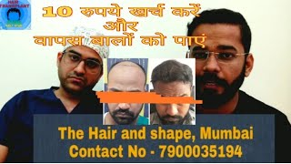 Doctor Said Hair Transplant in Rs 6 Per Graft || Best Hair Transplant Result Guaranteed in Rs10 Only