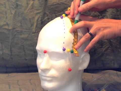 Scalp Acupuncture: Measuring Lateral Surface