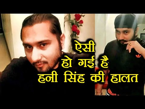 Honey Singh looks UNRECOGNIZABLE after sickness; Check out new photos | FilmiBeat