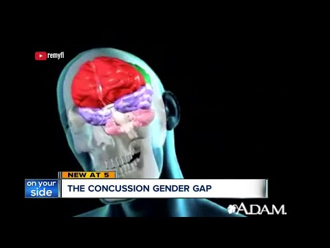 Concussions: Why female athletes are more susceptible than male athletes