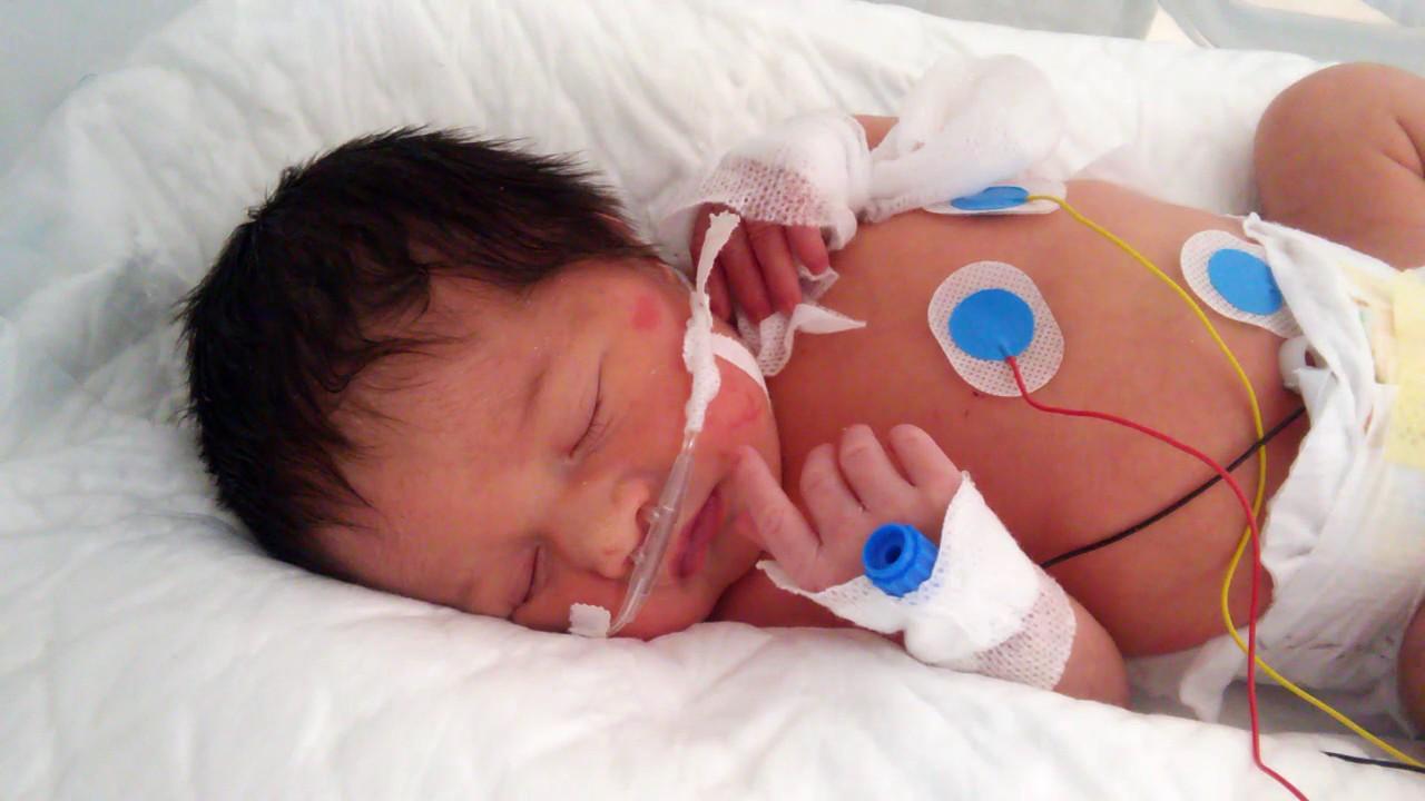 ef0bc0827 bebe prematuro 34 semanas - YouTube