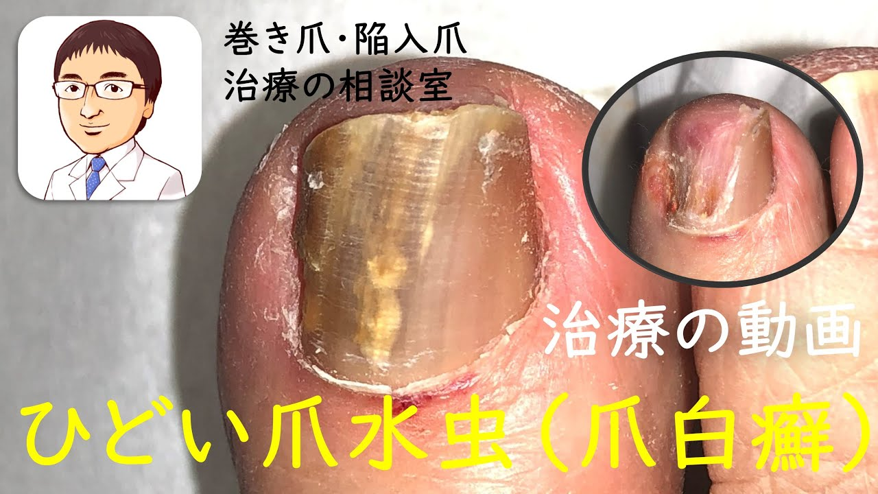 水 虫薬 爪