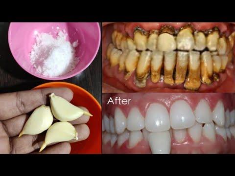تبييض الاسنان في