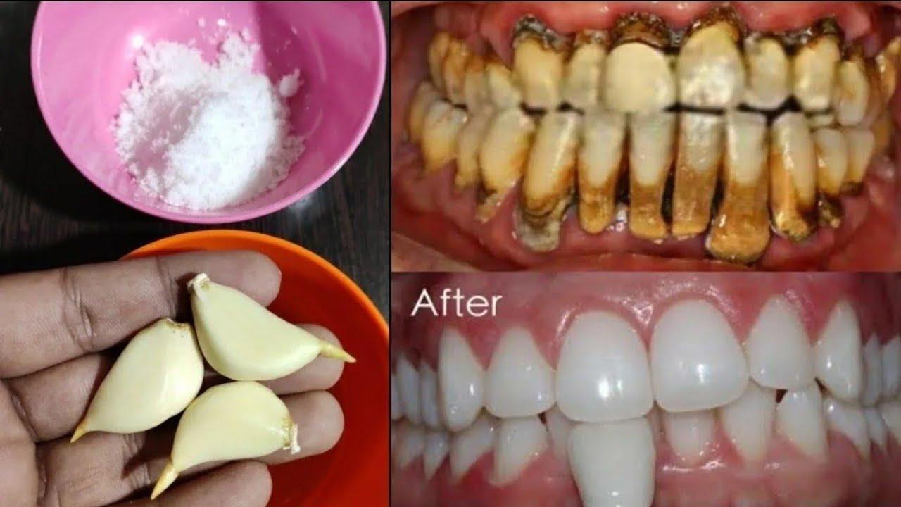 تبييض الاسنان في المنزل في 3 دقائق     كيف تبيض أسنانك الصفراء طبيعيا     100٪ فعال