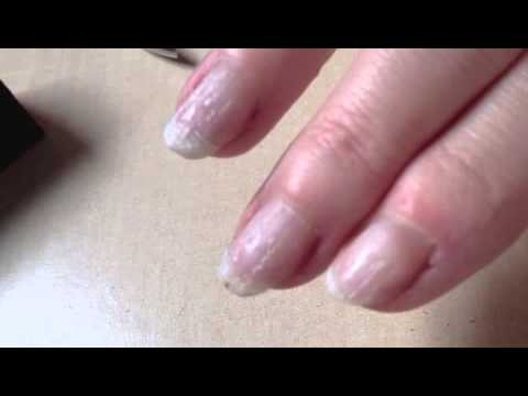How do you remove glue from fake nails