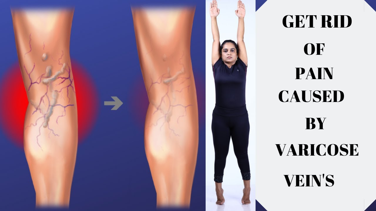 tratamentul video varicose varicose yoga