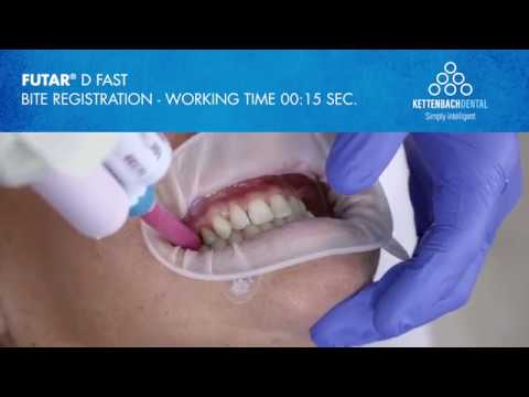 So Fast with Futar® D fast  - Bite registration