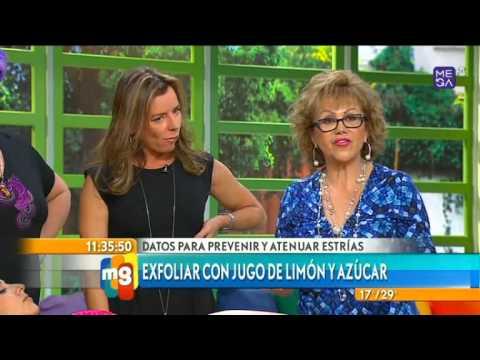 Angelica Contreras - Estética - Estrías, como atenuarlas - Mucho Gusto - www.mega.cl
