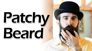 how to deal with a patchy beard