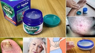 12 Surprising Uses Of Vicks Vaporub You Didn't Know  About This