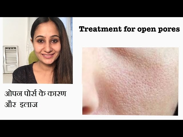 ओपन पोर्स के कारण और  इलाज | OPEN PORES | डॉ माधुरी अनंतवार