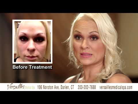 Versailles Medical Spa 2017 Commercials