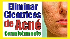 hqdefault - Tratamiento Para Cicatrices Acne Natural