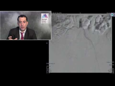 Bilateral Common Iliac Artery Disease - November 2017