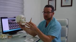 """ד""""ר ריאד - מהי השתלה בזאלית? - ?Dr. Riad - What is Basal Implantology"""