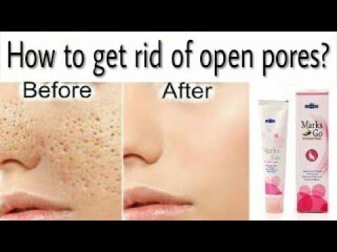 Best Cream For Open Pores Marks Go Fairness Cream Youtube
