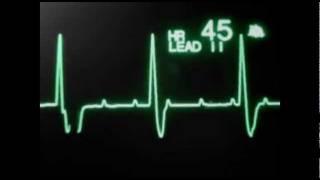 Нарушения сердечного ритма и проводимости на мониторе(, 2011-10-04T09:03:06.000Z)