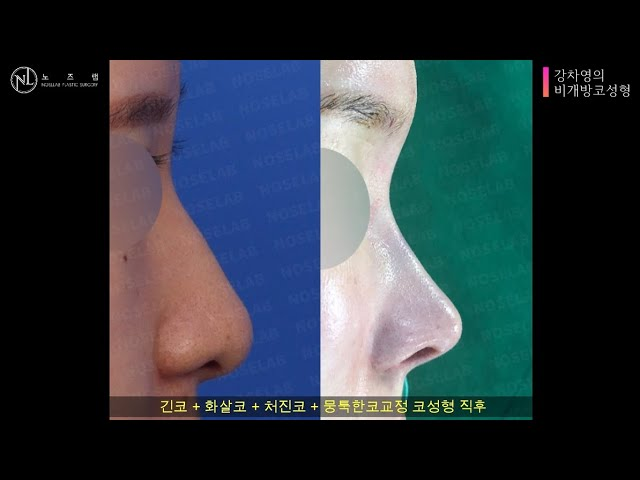 long nose + droopy nose + hanging nose + bulbous nose(closed rhinoplasty)