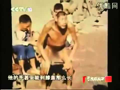 Hybride Humain découvert en Chine - Human Hybrid Found In china