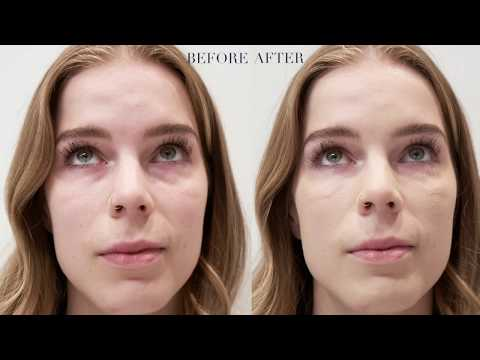 Under Eye Hollows Correction Vancouver, BC | Under Eye Treatment