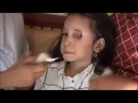 Testimoni Alga Tea Penderita Kanker Mata RetinoBlastoma ...
