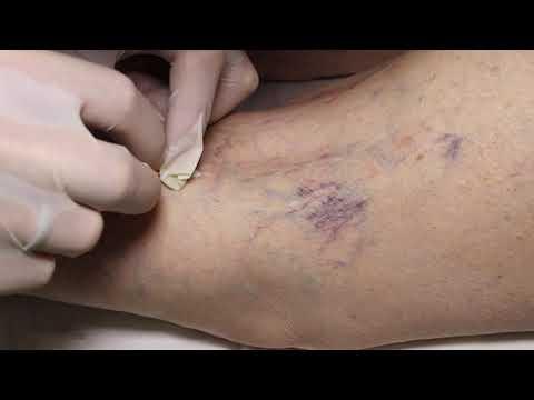 склеротерапия (