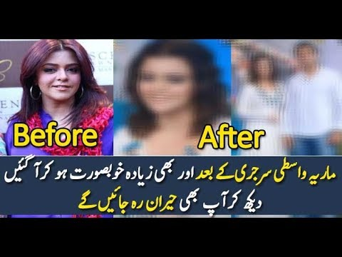 Maria Wasti After Surgery || you can't believe your eyes