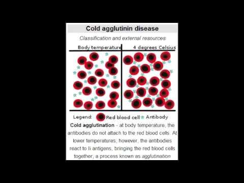 Cold Agglutinin Disease (autoimmune hemolytic anemia: Mycoplasma Pneumoniae & Mononucleosis)