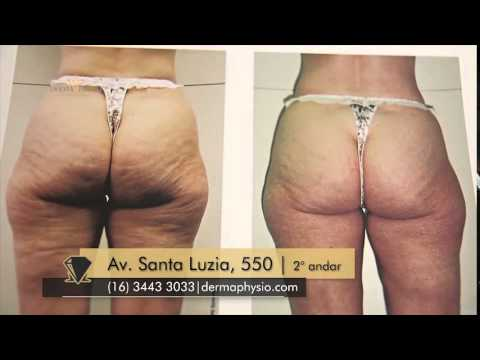 lpg celluliter test