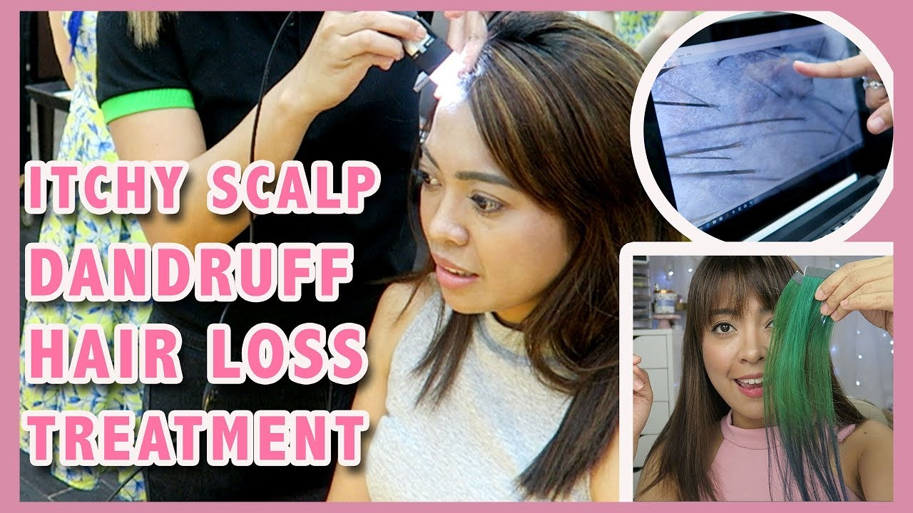 Treatment For Itchy Scalp Dandruff And Hair Loss At Heads Salon Gen Zel Habab Youtube