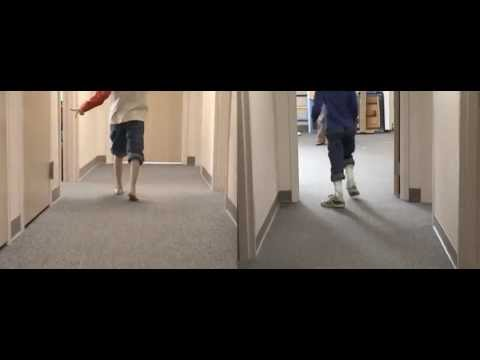 Before & After: Hyperextension | DAFO 2