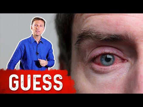 What Causes Bloodshot Eyes?